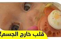 طفلة بريطانية تنجو من الموت بعد ولادتها بقلب ينبض خارج جسدها