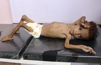 """""""صن"""" تنشر صورا مفجعة عن الحرب المنسية باليمن (شاهد)"""