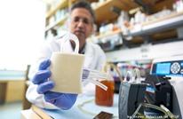 ثورة طبية.. علماء يطورون كلية صناعية بتكلفة بسيطة (شاهد)